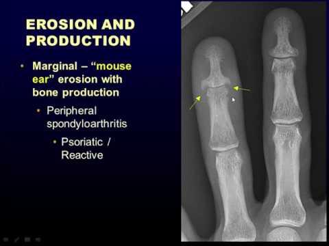 Radiograficzne podejście do artropatii