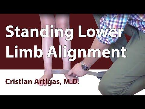 Standing Lower Limb Alignment