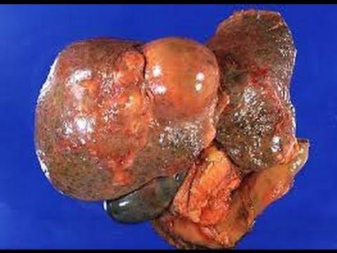 Ortopedia deformacja palucha