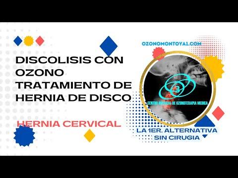 Osteochondrosis di reparto di petto spondilez sintomi