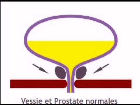 Puis-je obtenir un massage de la prostate orgasme