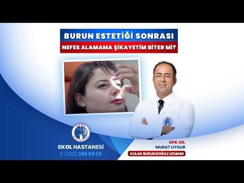 Burun Estetiği Sonrası Nefes Alamama Şikayetim Biter Mi? - Opr. Dr. Murat Uygur