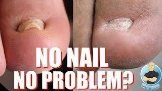 8 MINUTES OF TOES WITHOUT TOENAILS