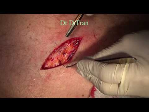 simple skin lesion excision with an ellipse
