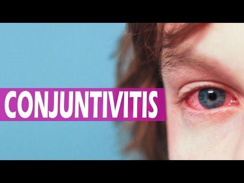 tratamiento para la rinitis alergica natural