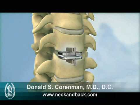 Cervical Artificial Disc Replacement