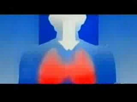Trattamento di un nervo schiacciato nella colonna vertebrale cervicale