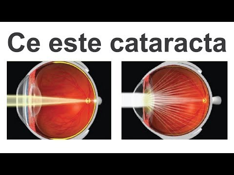 De ce ai nevoie de difenhidramină în oftalmologie