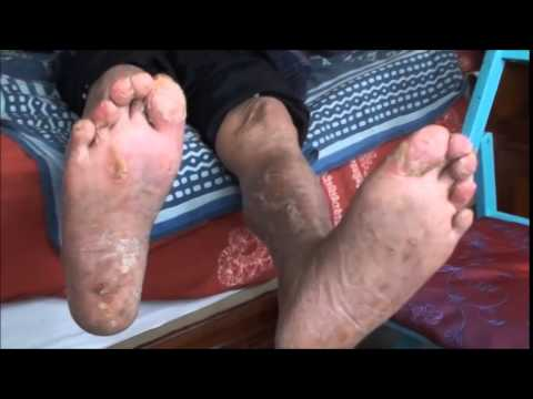 Sil y avoir être une toux à atopitcheskom la dermatite chez
