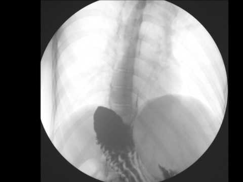 Rimedi di gente in trattamento di varicosity