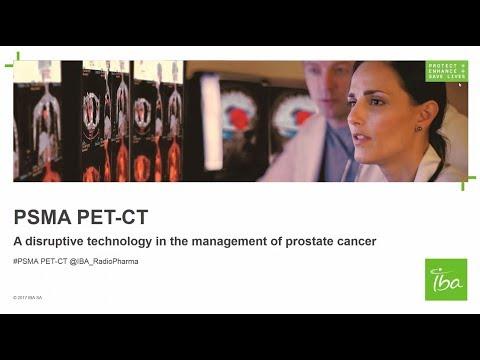 ПСМА ПЭТ/КТ: Революционная технология в лечении рака предстательной железы
