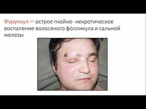 Гнойные заболевания кожи и мягких тканей