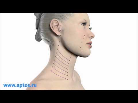 Implanty do obwisłych piersi