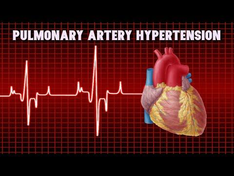 Magas vérnyomás 3 fok 3 szakasz
