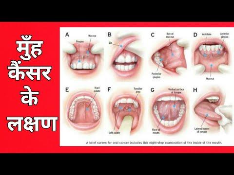 मुँह का कैंसर , ये लक्षण दिखे तो तुरंत डॉक्टर को दिखाएं