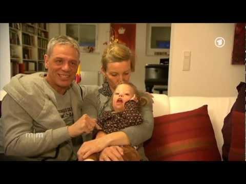 Watch videoLeben mit Trisomie 21