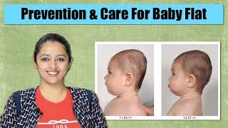 How To Maintain Baby Head Shape | Flat Head Prevention And Cure