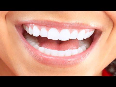 Video Apa penyebab gusi berdarah saat sikat gigi?