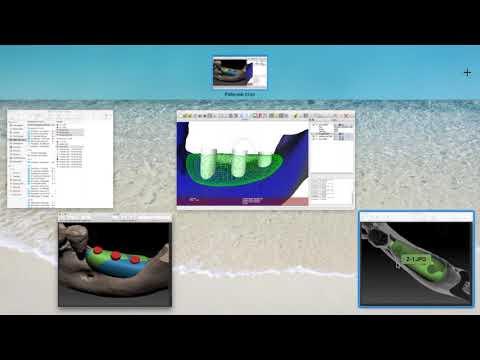 Создание высокоточной трех-мерной модели индивидуаль-ного блока. Часть 3