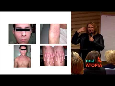 Antybiotyki wyprysk ze skórą