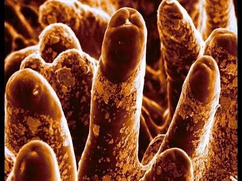 Sintomi di varicosity di una cavità addominale
