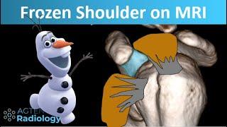 How Frozen Shoulder Looks On MRI