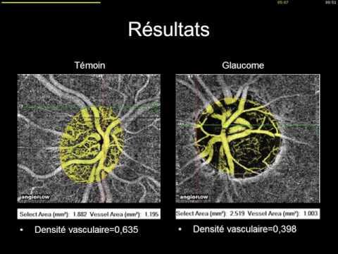 La varicosité dans le ventre chez les hommes