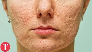 10 Things You Didnt Know About ACNE