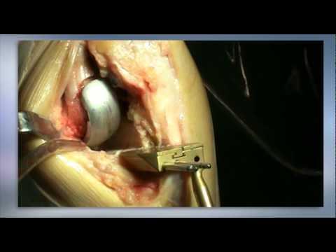 Tratamiento de la exacerbación de la osteocondrosis crónica