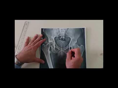Come viene chiamato infiammazione dellarticolazione della spalla