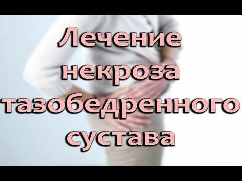 Некроз тазобедренного сустава: симптомы, причины и лечение