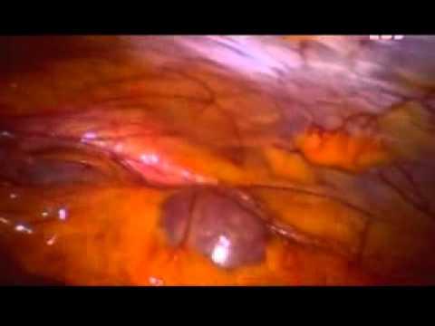 Анемия и функция печени