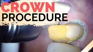 Dental Crown Explained  | Anterior Crown Preparation