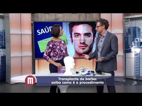 Mulheres- Tv Gazeta- Transplante de Barba