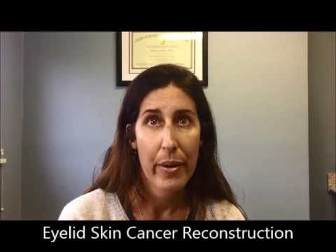 Courtney – Patient Testimonial Eyelid Skin Cancer Reconstructive Surgery