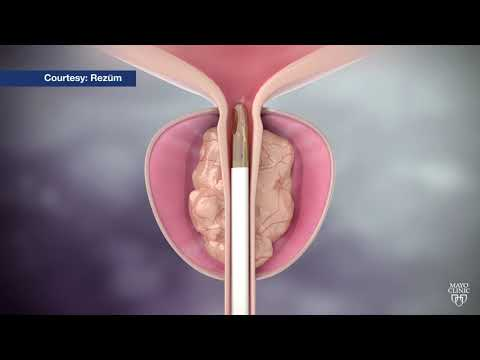 Scrotal surgery for prostate adenoma