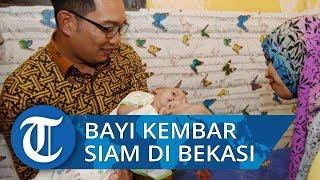 Ridwan Kamil Jenguk Bayi Kembar Siam di Bekasi, Minta Warga Doakan Operasinya Lancar