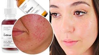 Poren verfeinern & verkleinern mit THE ORDINARY