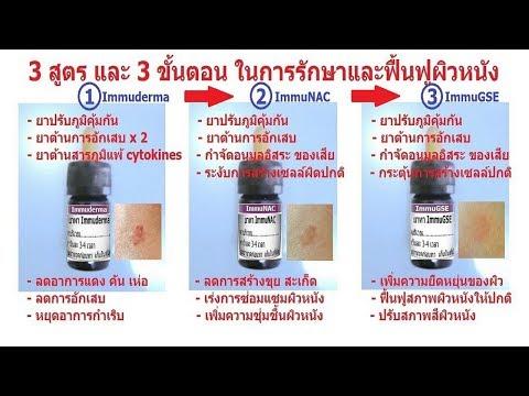 โรคผิวหนังภูมิแพ้ ICD-10