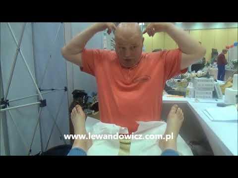 Koślawe i szpotawe kolana deformacji u dzieci leczonych