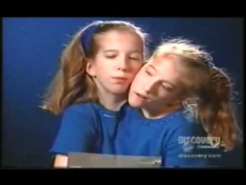 Abby (Abigail), and Brittany Hensel Conjoined Twins. Two heads, two souls in one body