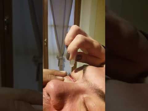 Operazione su cerchi scuri sotto occhi