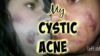 My  Cystic Acne 2006-2017 - Mamiposa26
