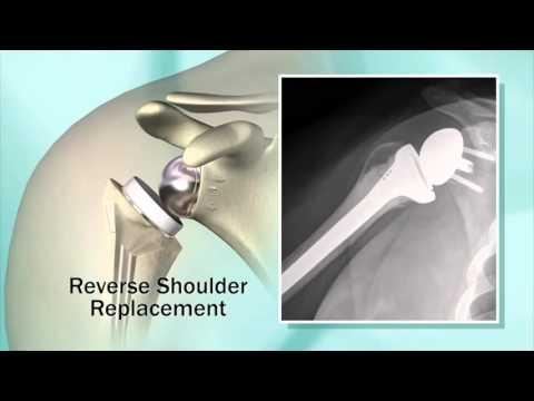 La crioterapia para el tratamiento de las articulaciones