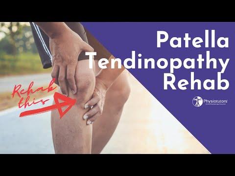 Ce afectează durerile articulare