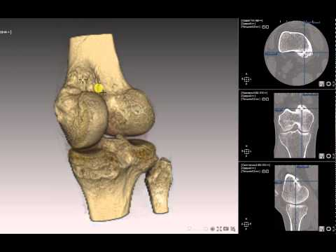 периостит бедренной кости