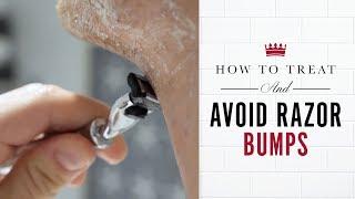 How to Treat and Avoid Razor Bumps