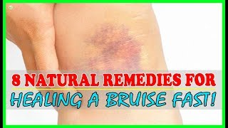 How To Get Rid Of Bruises Fast And Naturally? - Bruise Treatment | Best Home Remedies