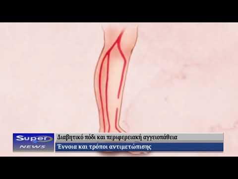 Αγγειοπλαστική διαβητικό πόδι