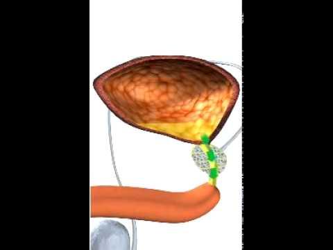 Wie Sie den Saft einer Prostata bekommen